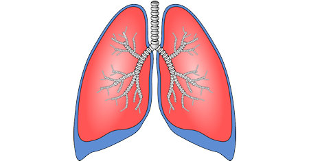Illustration of Pulmonary Disease