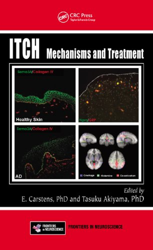 Large book cover: Itch: Mechanisms and Treatment